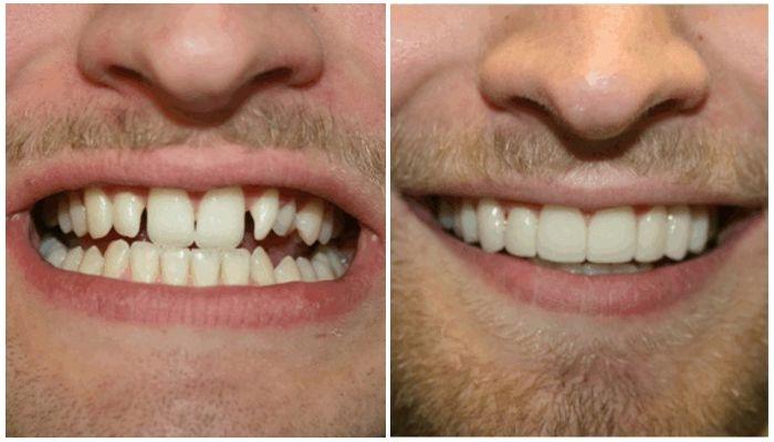 Фото до и после с винирами