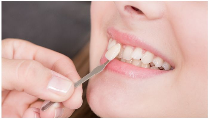 Видео установки виниров на передние зубы