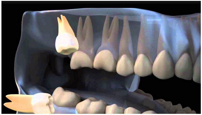 Зубы мудости