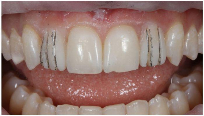 Фото зубов после снятия виниров